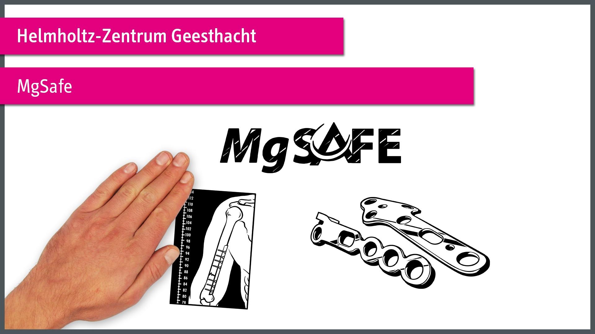 MgSafe einfach erklärt