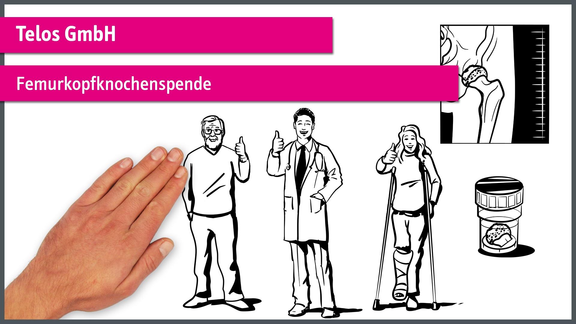 Femurkopfknochenspende - Telos GmbH